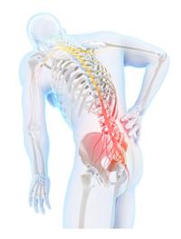 椎間板ヘルニア(腰椎・頸椎)に対するオステオパシー